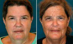 Fotos comparam envelhecimento de gêmeos fumantes e não fumantes