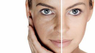 Conheça 7 hábitos que pioram a oleosidade da pele